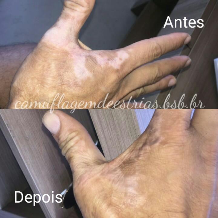 Camuflagem de Cicatrizes de Queimadura na Mão